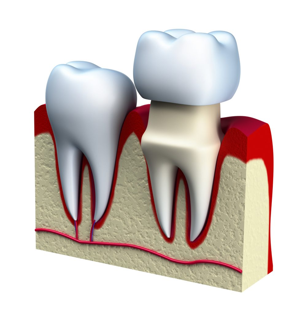 Who offers the best dental crowns in Miami?