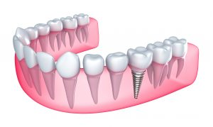 Where can I get Pembroke Pines Dental Implants ?