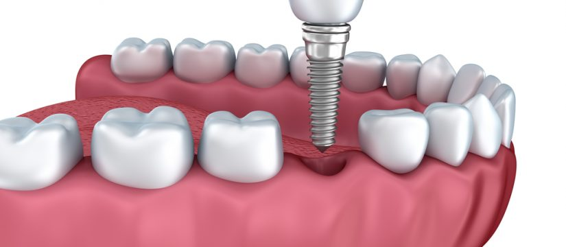 Who is the dentist for Dental Implants in Miami ?
