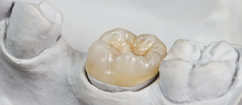 Who offers dental crowns in Miami?