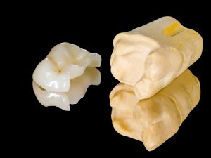 Where can I get dental crowns in Miami?