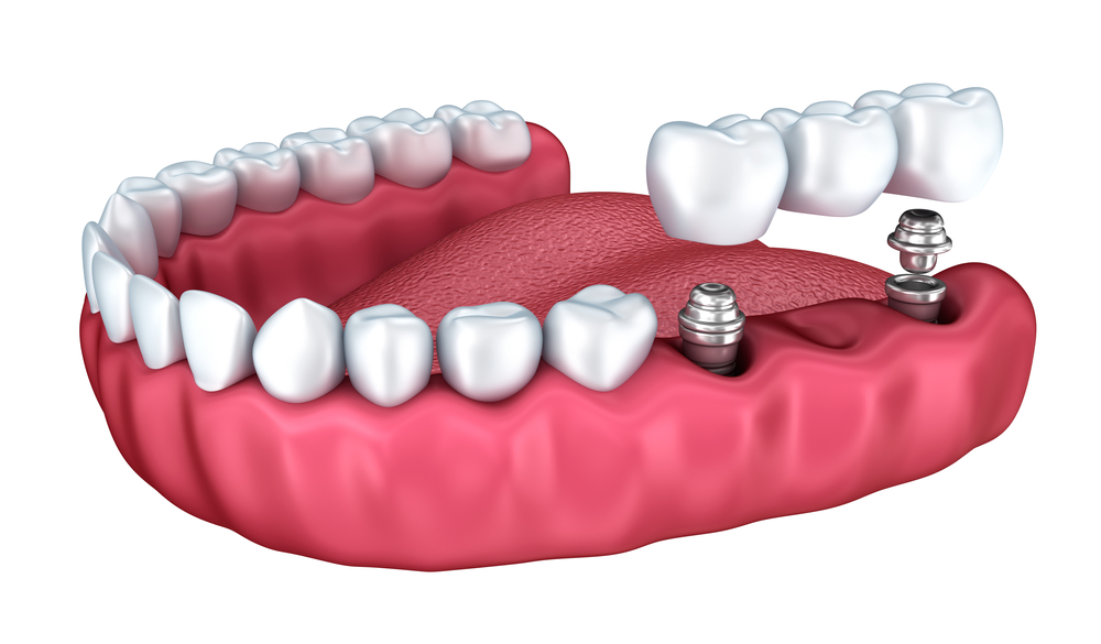 What do I need to know about dental implants in Kendall?