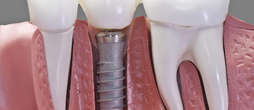 Where can I find dental implants in Miami?