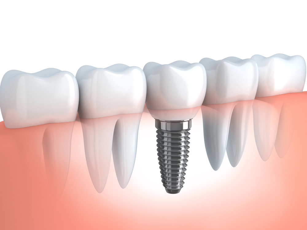 The best Pembroke Pines Dental Implants ?