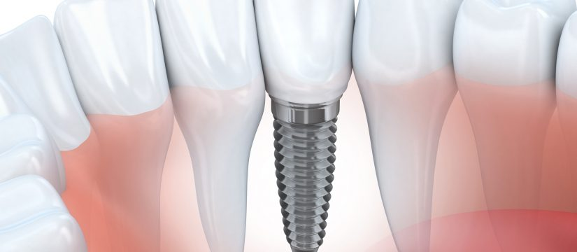 The best Pembroke Pines Dental Implants