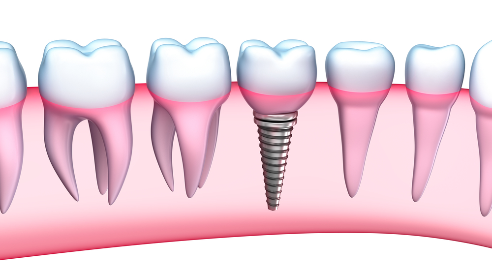 Where can I find Pembroke Pines Dental Implants ?
