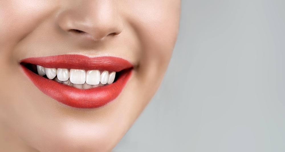 Who is the best dentist for Laminate Veneers in Pembroke Pines ?