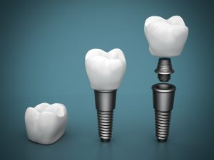 Who is the best dentist for Dental Implants in Kendall ?
