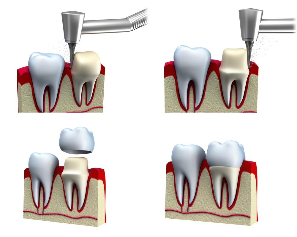 Where do I get dental crowns miami?
